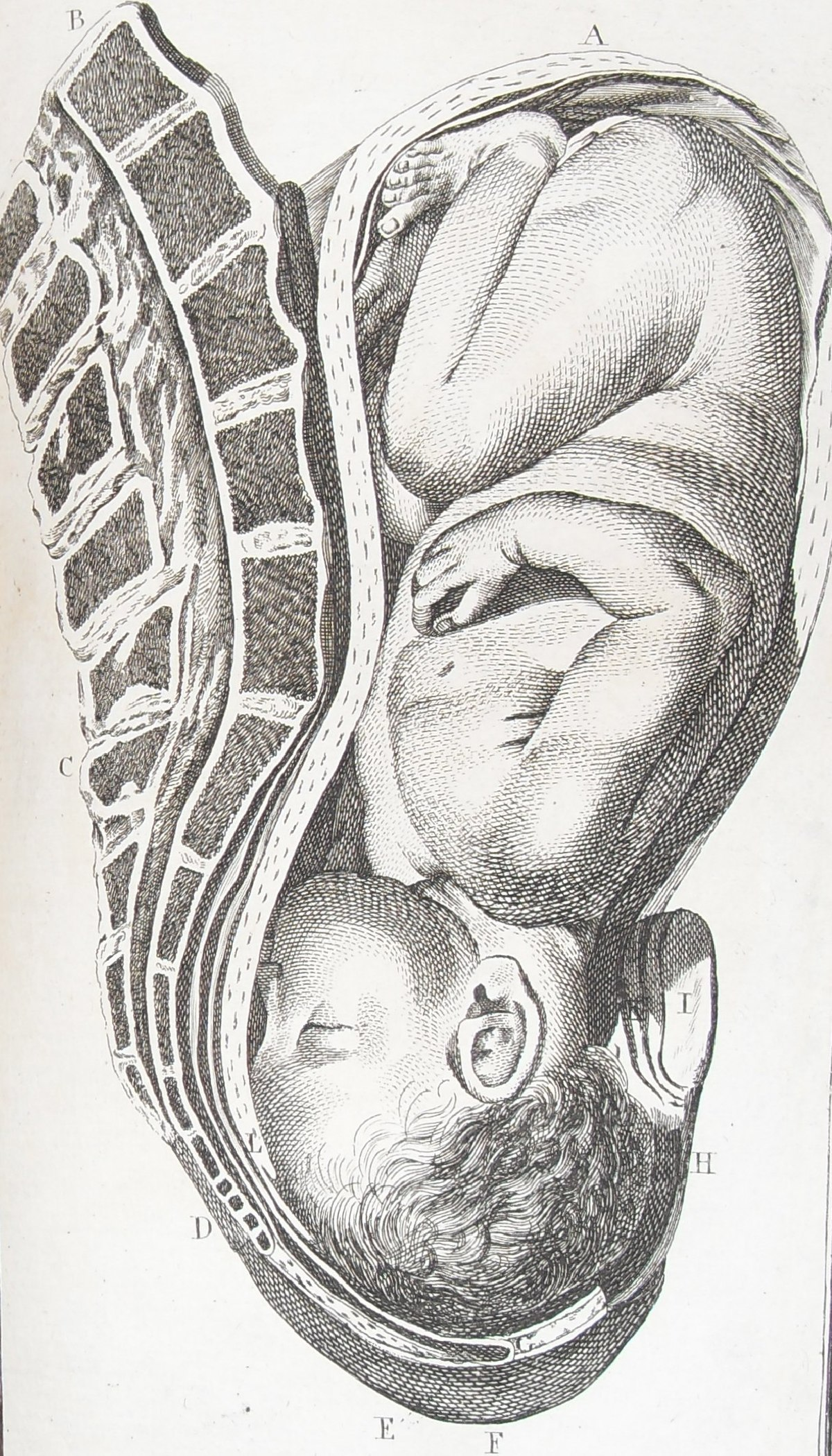Fetal position: the longitudinal presentation of the head than characterized 70
