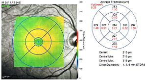 Optical coherence tomography - OCT retinal thickness map, right eye