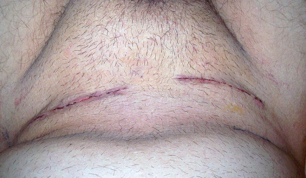 Gay male tube pubic hair a cock throbbing 3