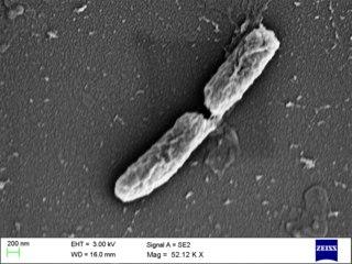 <i>Shigella flexneri</i> species of bacterium