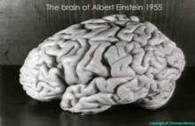 Albert Einstein's brain - Wikipedia