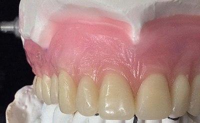Stippling Dentistry Wikipedia