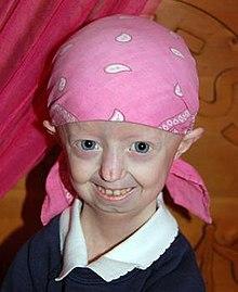 Hayley Okines - Wikipedia