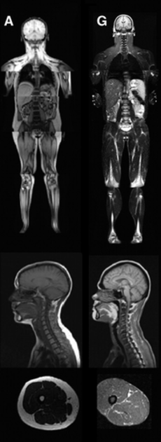 MRI of control patient vs. diseased patient.