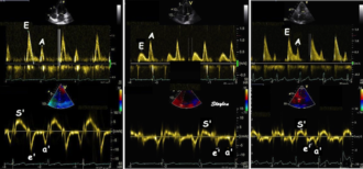 Tissue Doppler echocardiography - relation between mitral flow and mitral annulus velocity. Left: Normal person with good diastolic function; high E and e', normal E/e'. Middle, patient with diastolic dysfunction without increased filling pressure; low E and e', normal E/e' ratio. Left, patient with diastolic dysfunction and increased filling pressure; high E, low e' and high E/e'. Note also that the S' is reduced in proportion to the e'