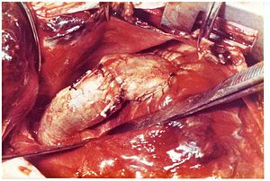 Marian Ionescu - Pericardial valved conduit from the right ventricle to the pulmonary artery