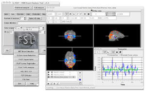 FMRIB Software Library - Example FSL GUIs
