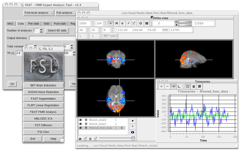 fsl flirt tutorial For the purposes of following my tutorials i recommend grabbing the version with the date that is close to the date of the videos posting if you still cannot download this paper supports the simplified model, in which case my traditional 3-level fmri model, using the software i typically use (fsl) is fine notably, afni has a.