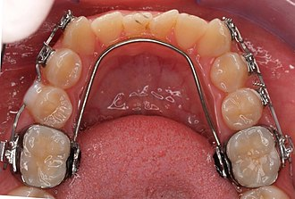 Lingual arch - Lower removable lingual arch.