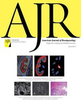 American Journal of Roentgenology - Image: American Journal of Roentgenology cover, June 2013