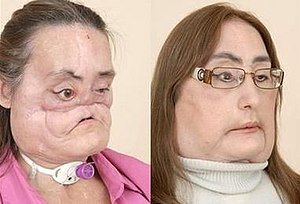 Connie Culp - Connie Culp, before and after the operation.