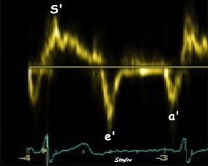 Tissue Doppler echocardiography - Single spectral tissue velocity curve from the mitral annulus. The curve shows velocities towards the probe (positive velocity) in systole, and away from the probe (negative velocities) in diastole. The most useful measures are the peak velocities, in systole S' and in early diastole (e') and late diastole during atrial contraction (a').
