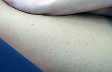 Female skin large.jpg