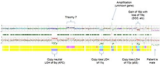 Loss of heterozygosity - SNP array Virtual karyotype of a colorectal carcinoma (whole genome view) demonstrating deletions, gains, amplifications, and acquired UPD (copy-neutral LOH).