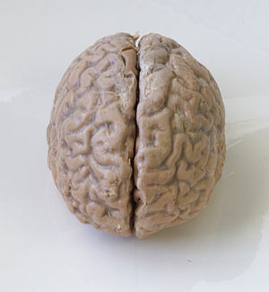 When Our Brains Short-Circuit