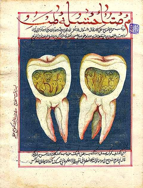 Jinn causing toothaches