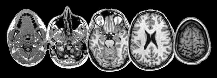 MRI Head 5 slices