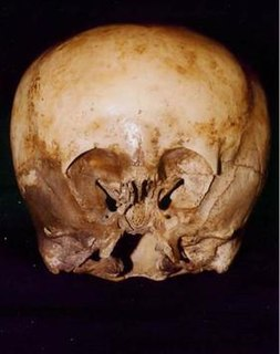 Starchild skull archaeological find