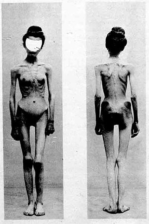 "History of anorexia nervosa - Two images of an anorexic female patient published in 1900 in ""Nouvelle Iconographie de la Salpêtrière"". The case was entitled ""Un cas d'anorexie hystérique"" (A case of hysteria anorexia)."