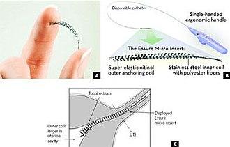 Essure - Image: Essure Permanent Birth Control device