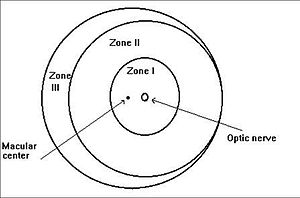 Zones of the retina in ROP
