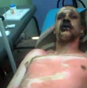 2010–12 Algerian protests - Mohsen Bouterfif in the hospital showing the wounds from his self-immolation