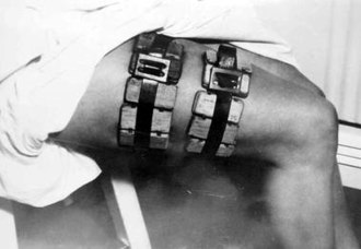 Feeder of lice - Cages with typhus carrying lice strapped onto a person's thigh. During World War II, feeding the lice with human subjects' blood was the only way to produce a viable typhus vaccine.