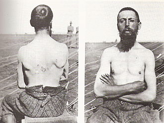 Medical treatment during the Second Boer War - A British soldier wounded by a Boer Mauser bullet