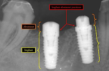 implants abutment