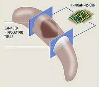 Artificial organ - A diagram of a hippocampal prosthesis