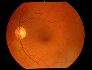 Teleophthalmology - Healthy eye fundus viewed through a retinal camera