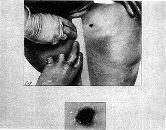 John F. Kennedy autopsy - Drawing depicting the back wound of President Kennedy. Made from an autopsy photograph.