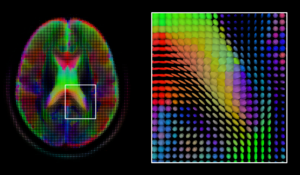 Medical image computing - A mid-axial slice of the ICBM diffusion tensor image template. Each voxel's value is a tensor represented here by an ellipsoid. Color denotes principal orientation: red = left-right, blue=inferior-superior, green = posterior-anterior