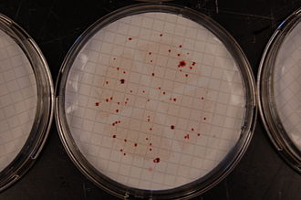 Indicator bacteria - Enterococci colonies growing on a selective agar after membrane filtration.