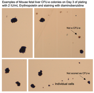 CFU-E - mouse CFU-E colonies stained on Day 3 with Diaminobenzidine for hemoglobin