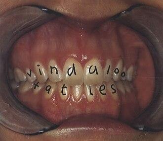 Vindaloo (song) - Image: Vindaloo cover