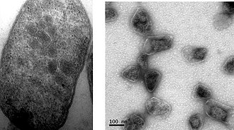 Bacterial microcompartment - Electron micrograph of Escherichia coli cell expressing the PDU BMC genes (left), and purified PDU BMCs from the same strain (right). (Image credit: Joshua Parsons, Steffanie Frank and Martin Warren)