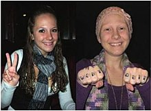 Ashley Kirilow, before and after altering her appearance to fake cancer.