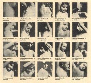Nazi human experimentation - Image: Children of Bullinhuser Damm