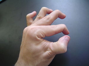 A double jointed hand.