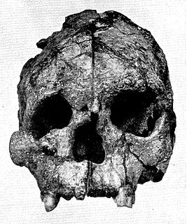 Talgai Skull
