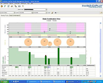 """Diabetes management software - Example 4: A summary of a """"pumping day"""" including total insulin delivered and blood glucose testing statistics"""