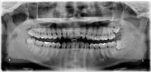 The upper left (picture right) and upper right (picture left) wisdom tooth are distoangularly impacted. The lower left wisdom tooth is horizontally impacted. The lower right wisdom tooth is vertically impacted (unidentifiable in X-ray image).