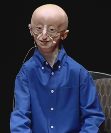 Sam Berns at TEDx Talks 2013.png