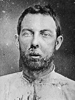 Jim Younger - A wounded Jim Younger after his arrest in 1876