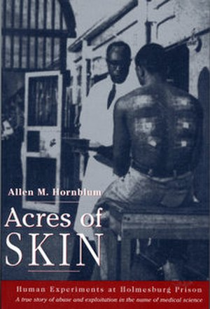Acres of Skin - Image: Acres of Skin (book cover)
