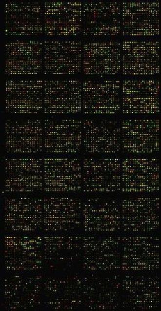Immunomics - The Lymphochip: A specialized cDNA microarray