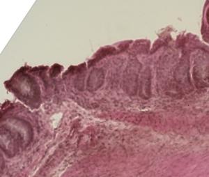 Histologia do cólon de camundongo da doença aguda do enxerto versus hospedeiro.
