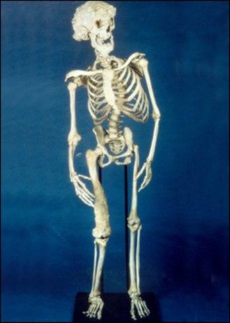 Joseph Merrick - The skeleton of Joseph Merrick
