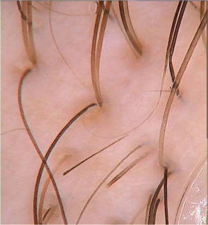 Trichoscopy image of alopecia areata